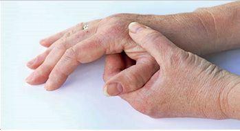 La diagnosi di artrite reumatoide